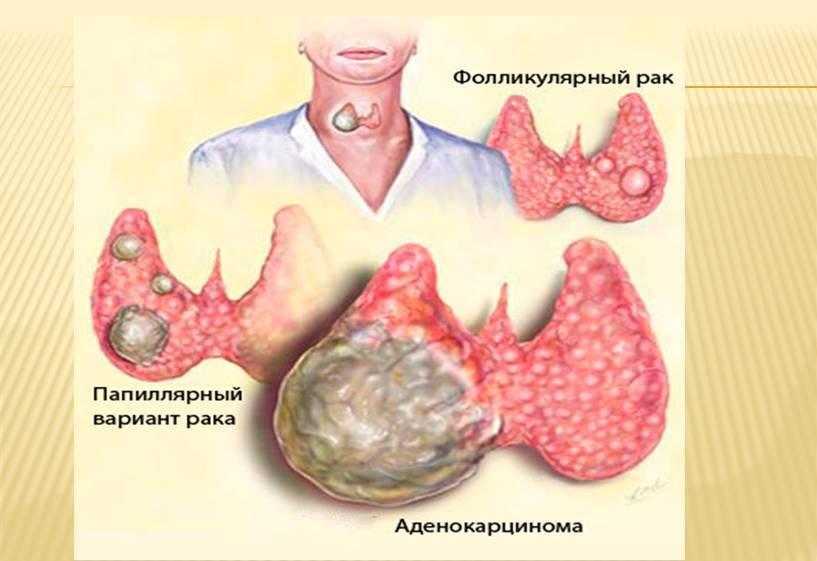 метастазы при раке щитовидной железы