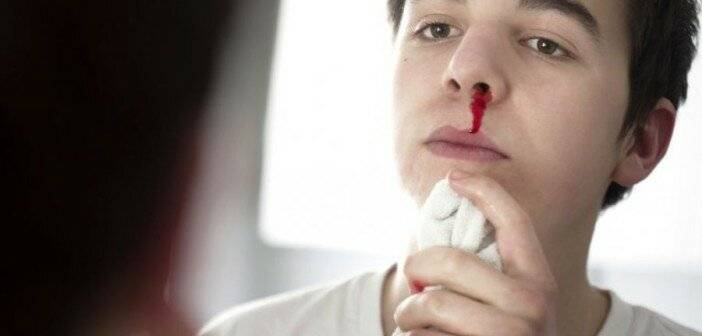 почему из носа идет кровь по утрам