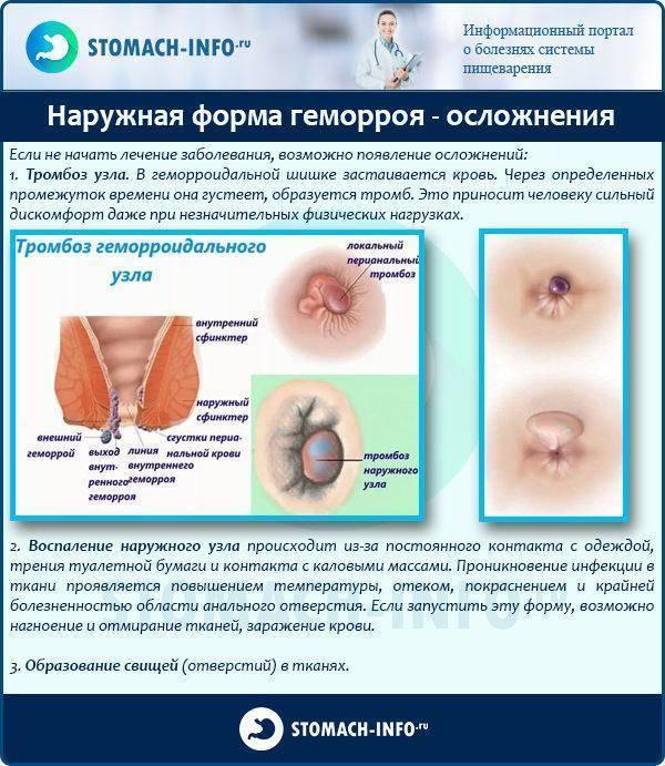 Тромбоз геморроидального узла: лечение, причины, диагностика, возможные осложнения