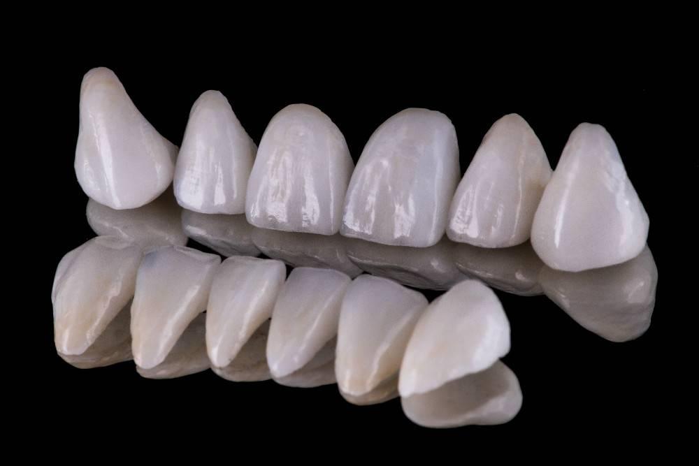 Керамические зубы: что это такое, плюсы керамических коронок