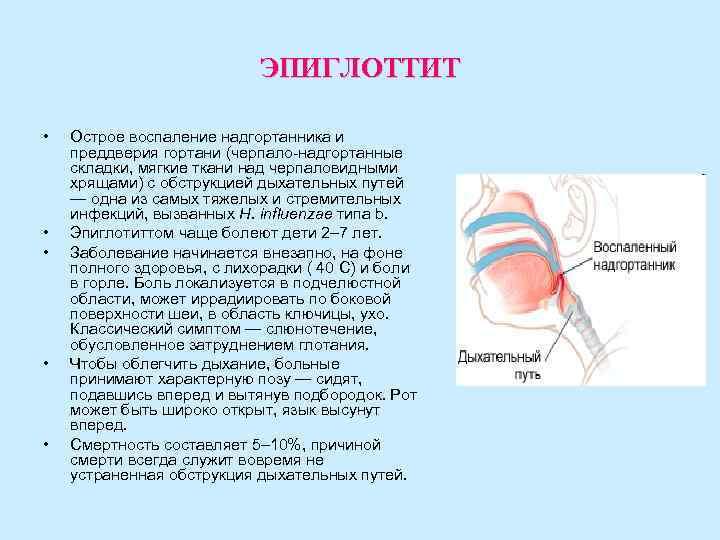 острый эпиглоттит
