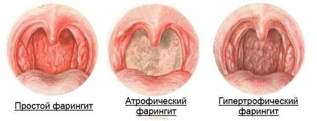 Лечение хронического фарингита у взрослых народными средствами быстро и легко