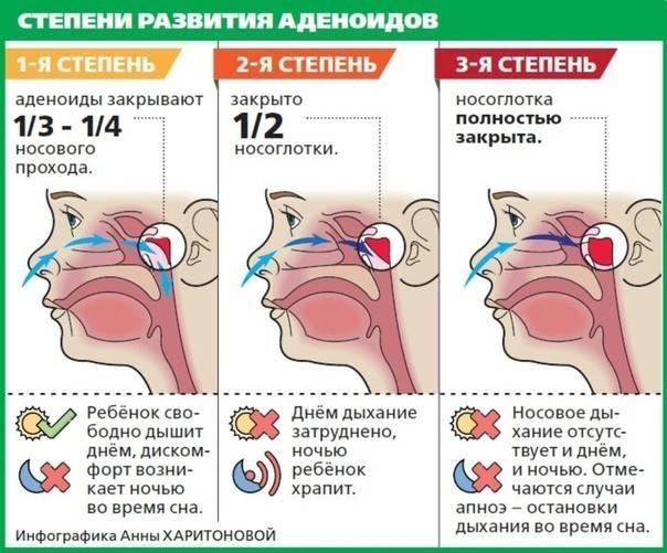 Аденоиды - лечение народными средствами у детей: эффективные методы