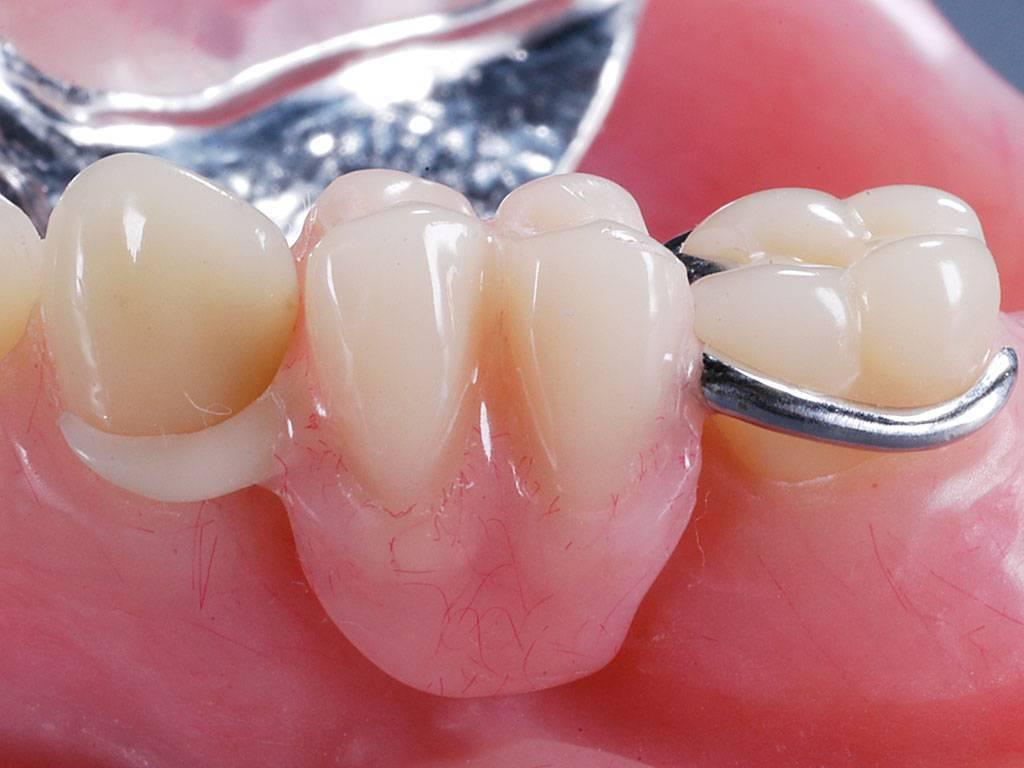 протезирование зубов что это