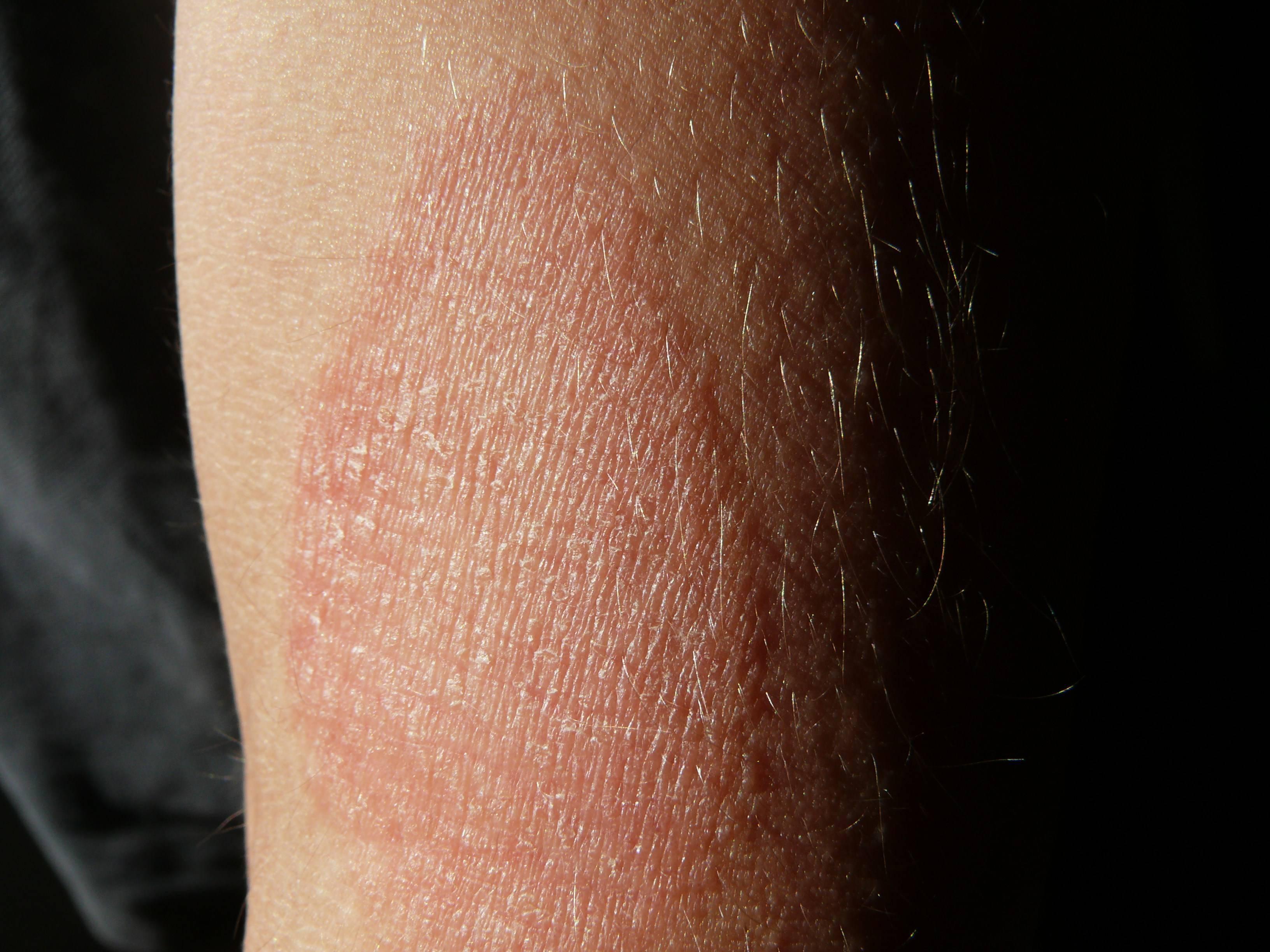 дерматит на локтевом сгибе