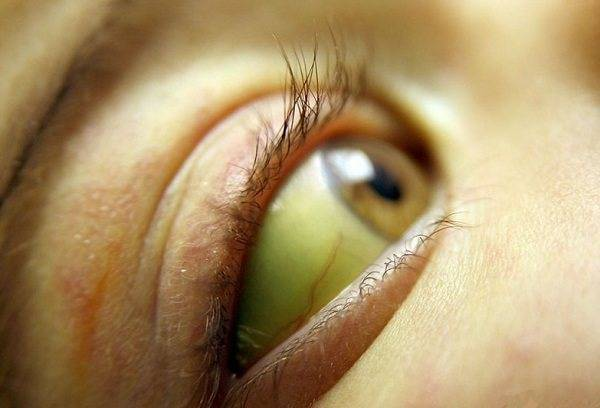 Почему у новорожденного желтые белки глаз
