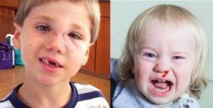 Что делать при переломе носа у ребенка
