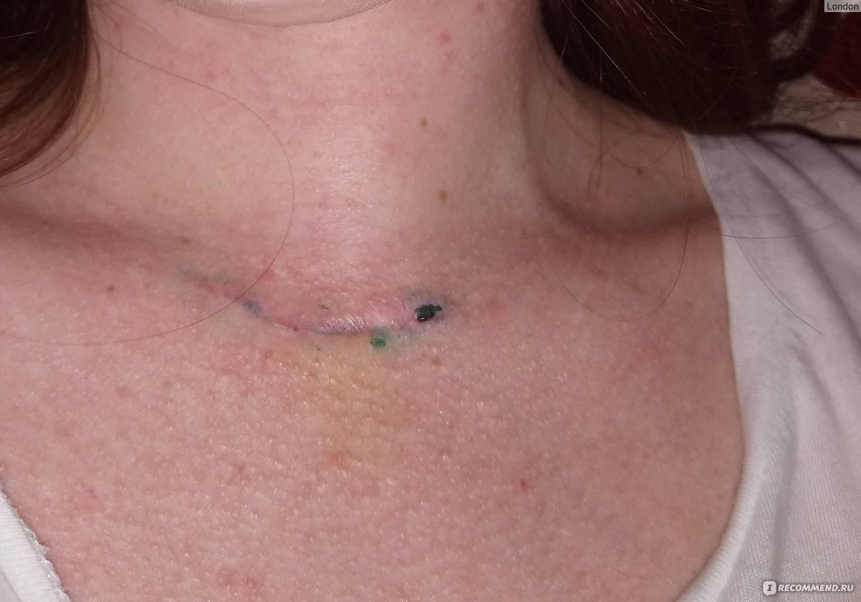 Удаление щитовидной железы – последствия, жизнь после удаления щитовидной железы. операция по удалению щитовидной железы