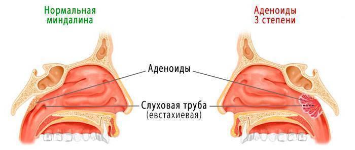 аденоиды 2 степени у детей