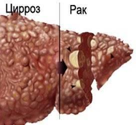 Общее и отличия цирроза от рака печени