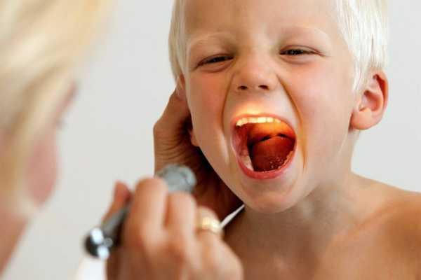 Герпесная ангина у детей (19 фото): симптомы и лечение герпетической формы, симптомы, как выглядит