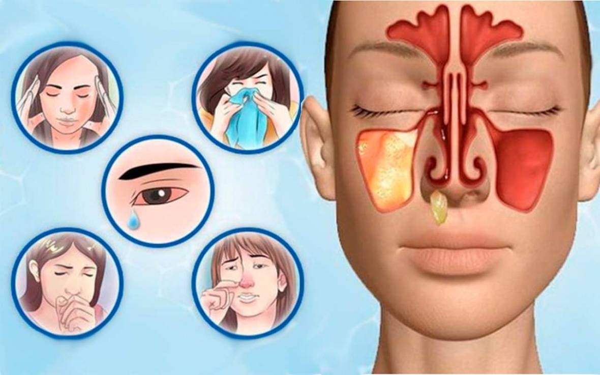 Лечение гайморита и синусита