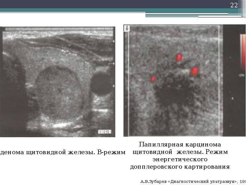 Продолжительность жизни при папиллярном раке щитовидной железы