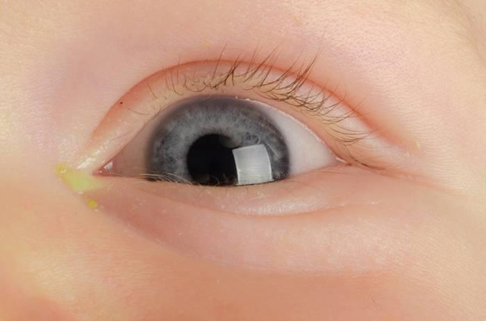 Глаз гноится и слезится - глазик слезится и гноится - запись пользователя gylena (gylena) в сообществе здоровье новорожденных в категории болезни глаз - babyblog.ru