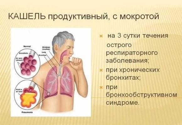 Желтая мокрота при кашле – причины и лечение