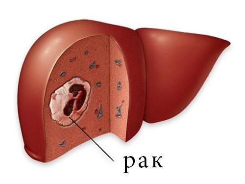 Первичный рак печени у ребенка. рак печени: лечение у детей. что такое гепатобластома