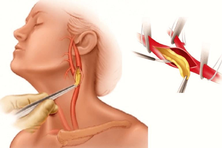 Виды нестенозирующего атеросклероза брахиоцефальных артерий: расскажем о лечении и других нюансах