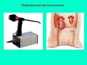 Операция на геморрой: как проходит и какие преимущества есть у лазера?