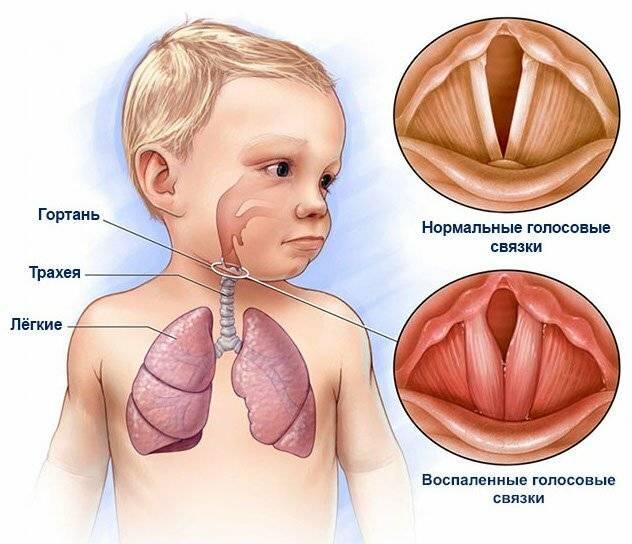 Аллергический фарингит - симптомы, лечение - vmiretrav.ru