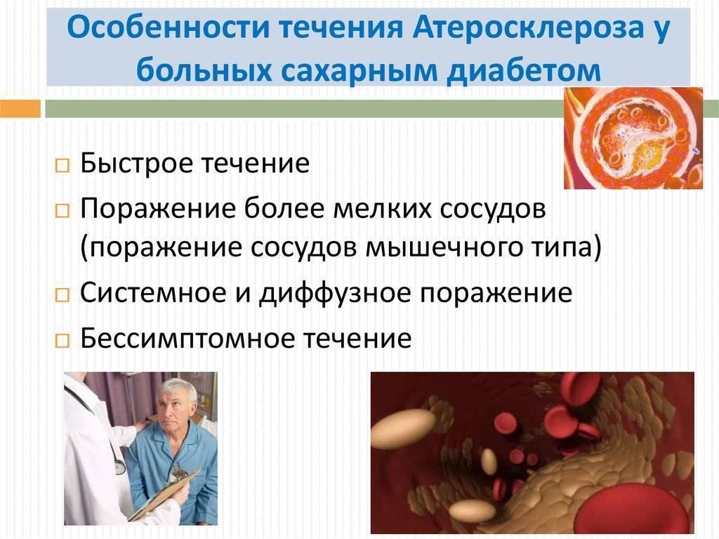 Лечение атеросклероза сосудов нижних конечностей у диабетиков