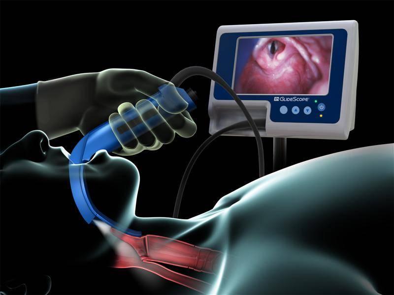 фиброскопия гортани