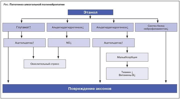 Алкогольная полинейропатия: симптомы, лечение, прогноз