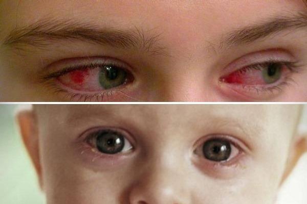 вирусный конъюнктивит у детей лечение