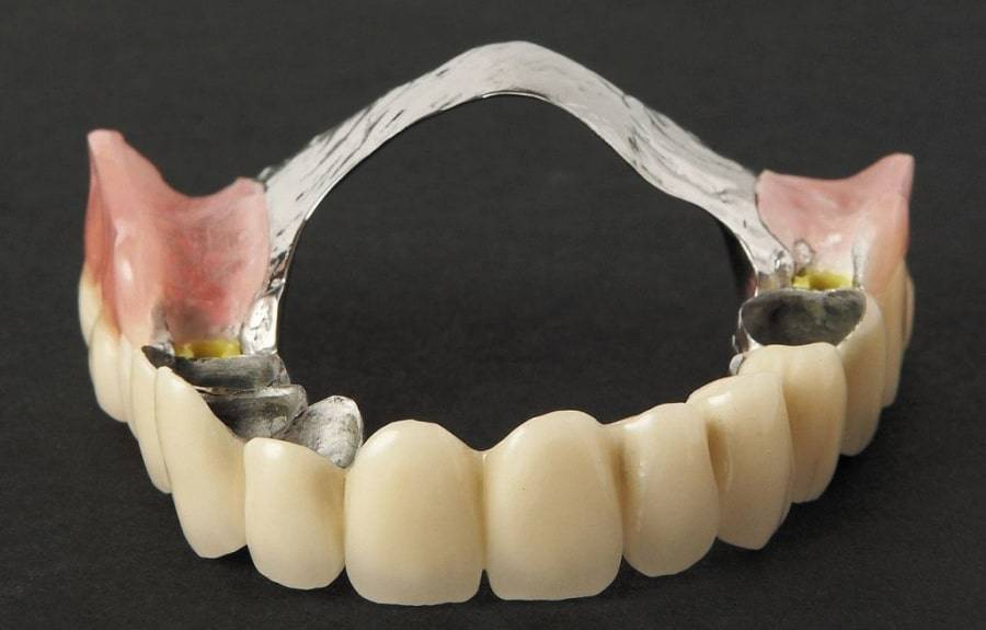 Бюгельный протез зубов