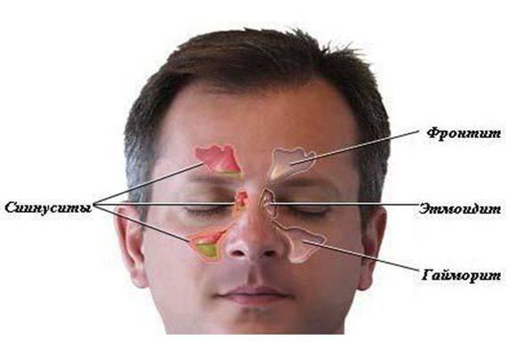 Почему возникает головная боль при гайморите?