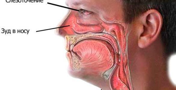 что закапать в нос чтобы чихать