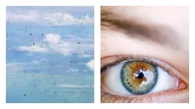 белые точки на глазах