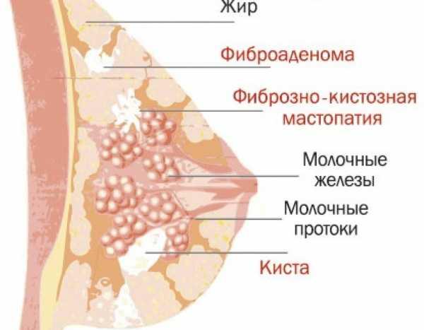 Фиброаденома молочной железы симптомы, лечение и операция по удалению