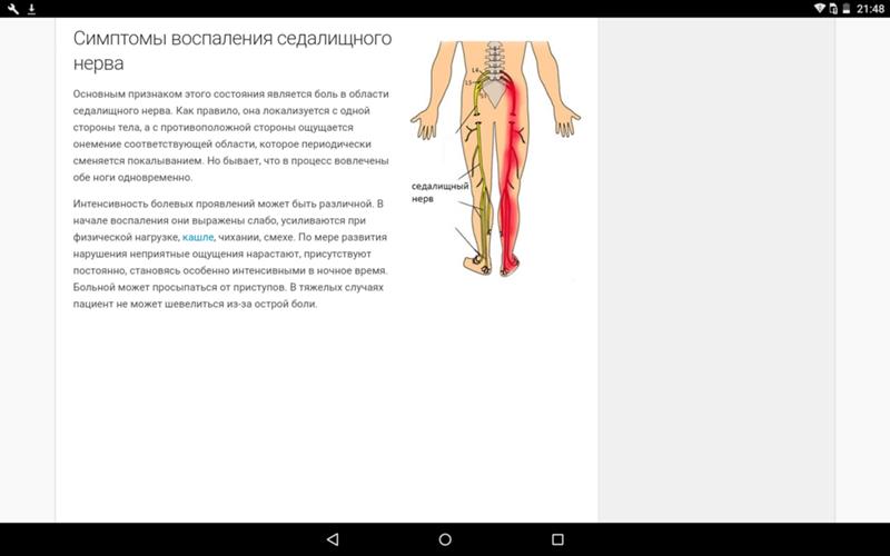 Невралгия седалищного нерва: симптомы и лечение