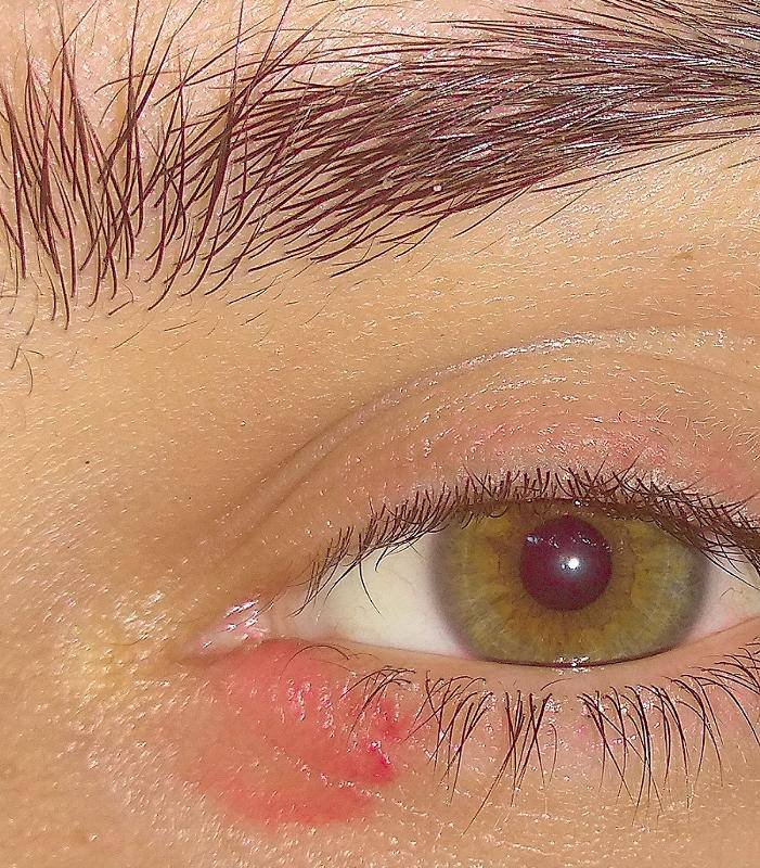 внутренний уголок глаза красный