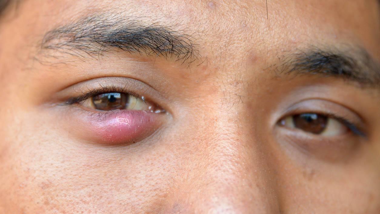 От чего может болеть веко глаза что делать