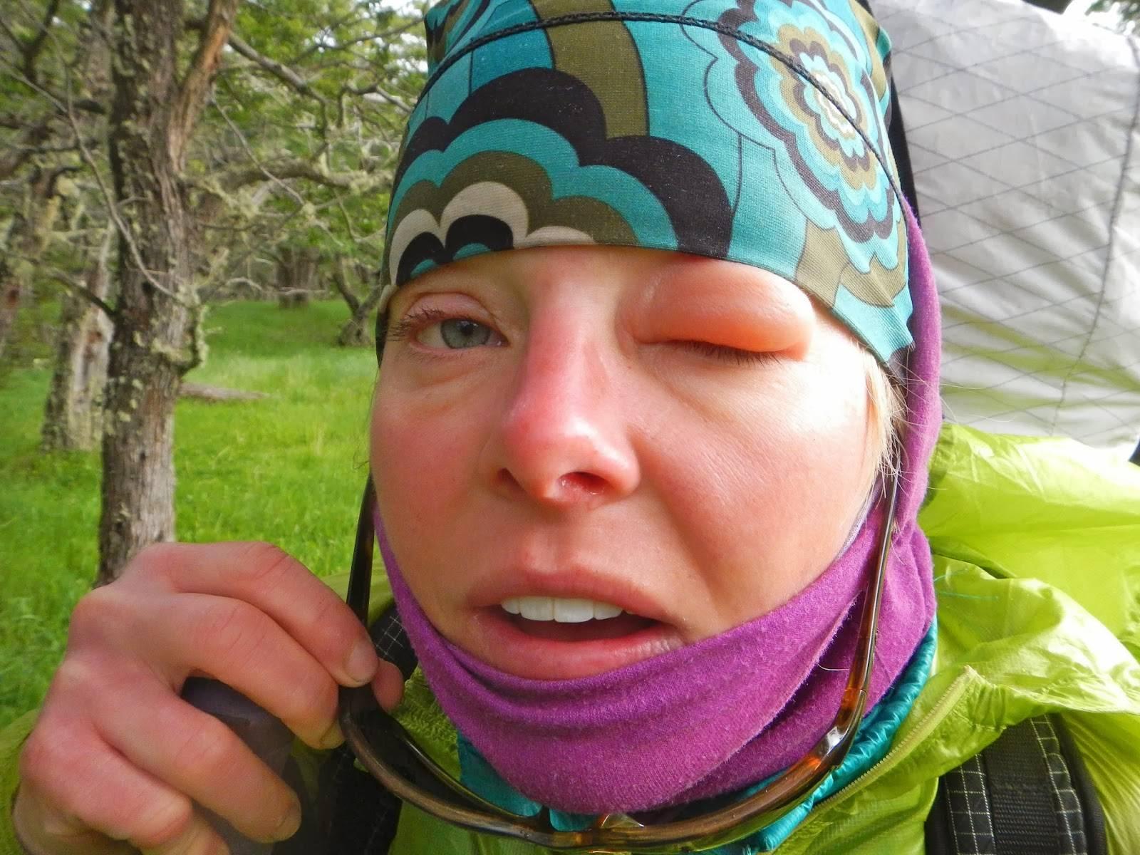 укус мошки в глаз отек лечение