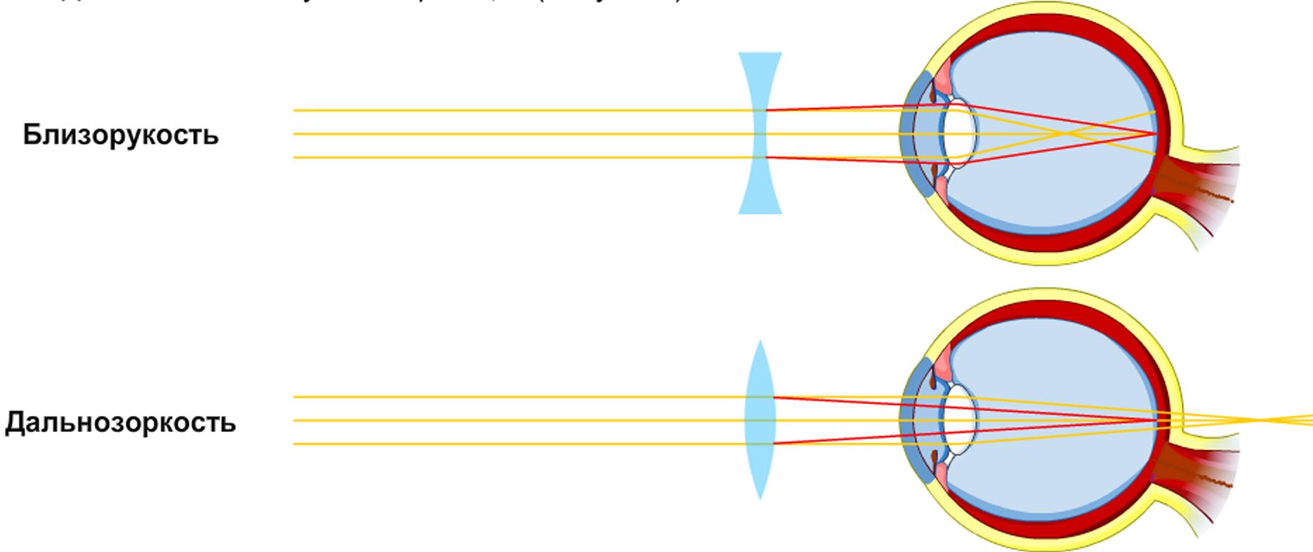 Может ли одновременно развиться близорукость и дальнозоркость?