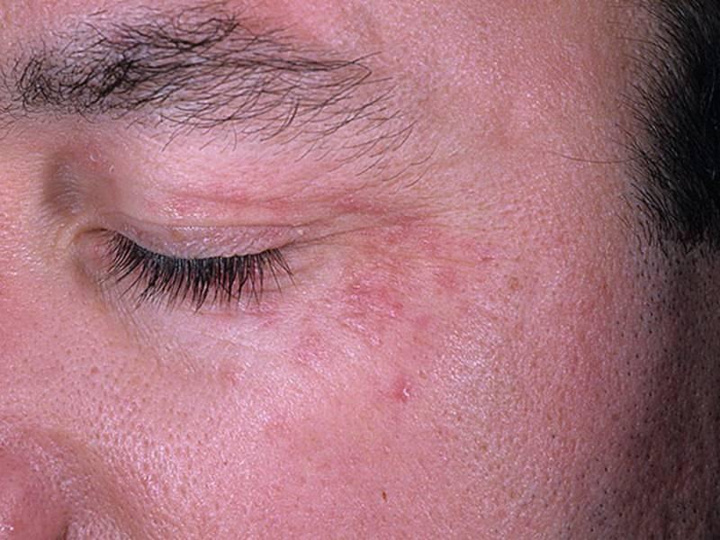 Пеленочный кандидозный дерматит у ребенка