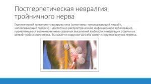 лечение постгерпетической невралгии болей при опоясывающем лишае