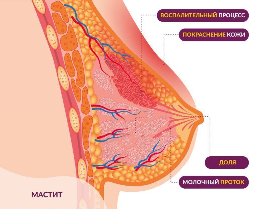 Жжение в груди у женщин. причины возникновения и диагностика болей. профилактика заболеваний молочных желез