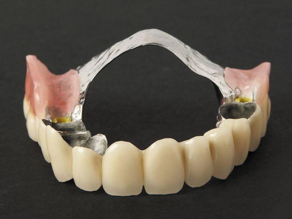 зубные протезы виды