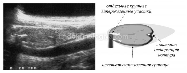 Гипоэхогенный узел щитовидной железы – причина для паники или легкий недуг?