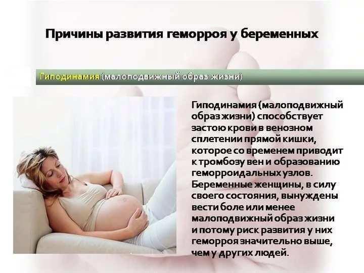 ''деликатная'' проблема. геморрой у беременных
