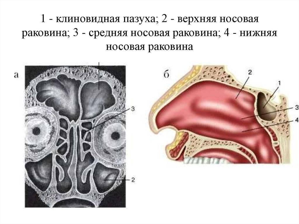 клиновидная пазуха воспаление