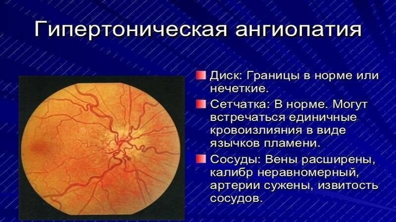 Ангиосклероз сетчатки: что это такое?