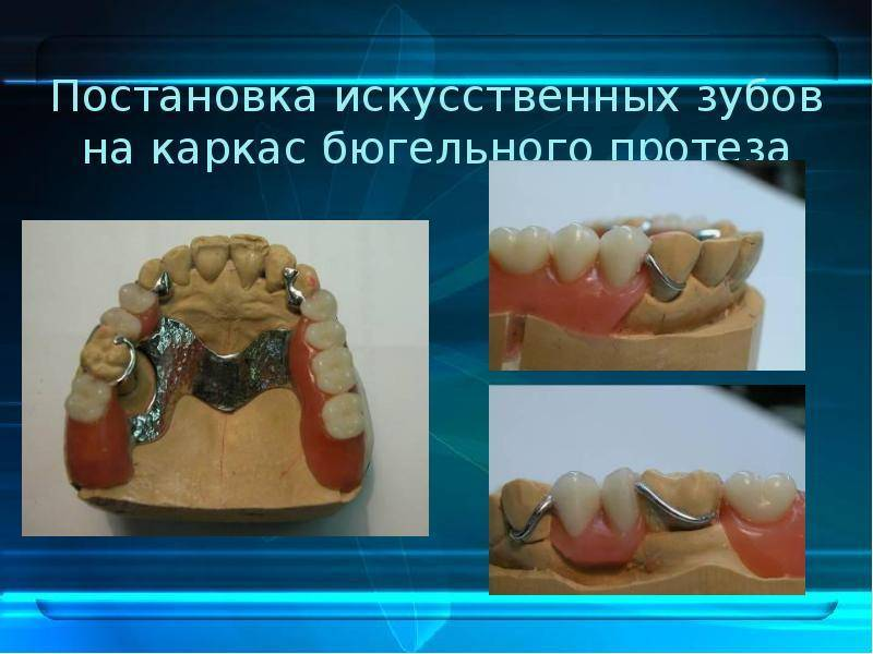 Бюгельные протезы. клинико-лабораторные этапы изготовления. современные зубные протезы на смену бюгельным - презентация