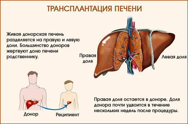 Операция по пересадке печени: подготовка, проведение, где и как делают