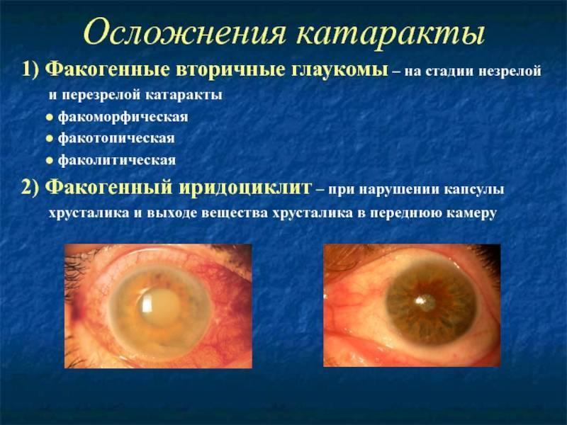 вторичная глаукома лечение