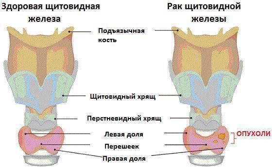 Как определить развитие рака щитовидной железы на начальных стадиях