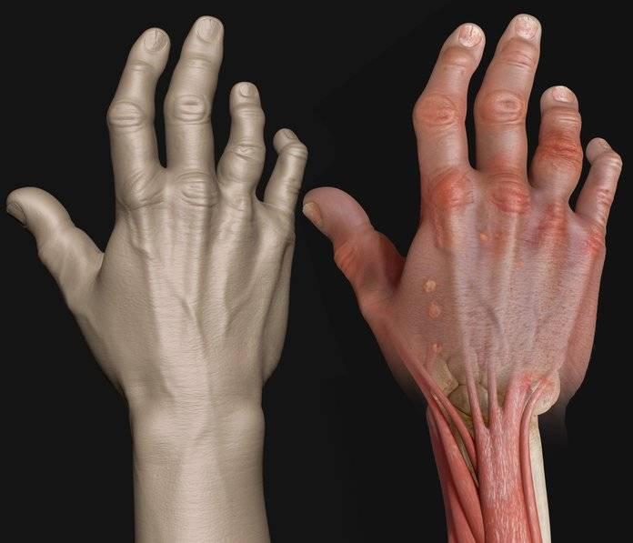 псориаз артрит